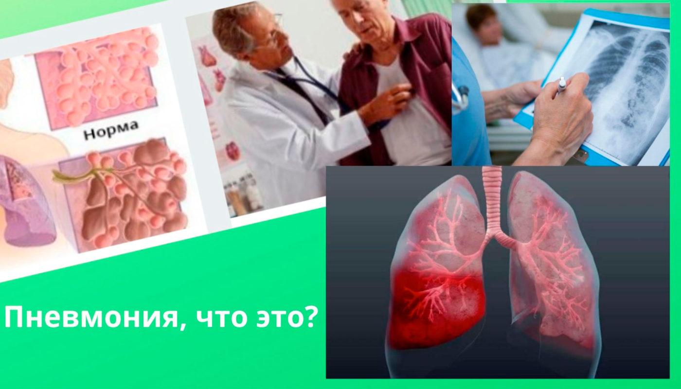Пневмония-воспаление легких у взрослого человека: симптомы, профилактика и лечение по методу профессора А.Т. Огулова