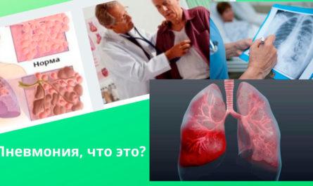 Легочная пневмония: диагностика, симптомы, профилактика и лечение