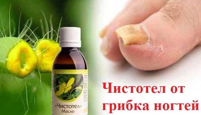 Чистотел поможет в лечении грибка ног и ногтей